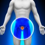 Prostatite et dysfonctionnement érectile : causes et remèdes